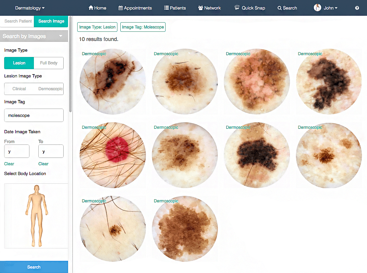 Intelligent Dermatology Software - Total Body Photography
