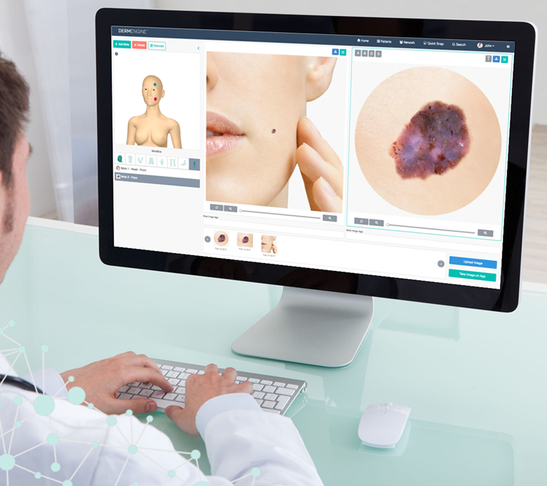 DermEngine Intelligent Dermatology Software
