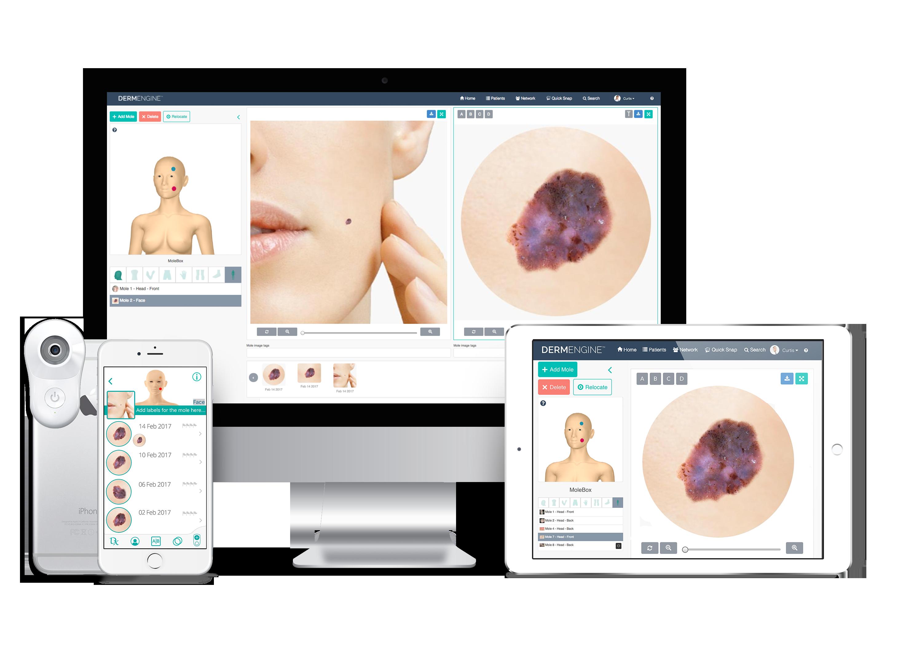 DermEngine Intelligent Dermatology Software