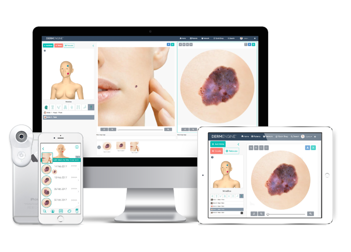 DermEngine MoleScope II cross platform