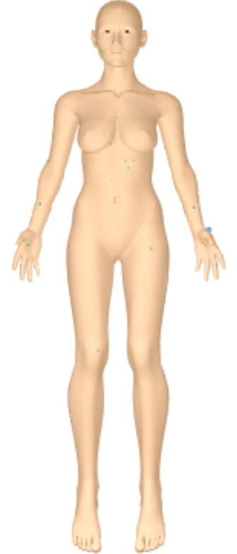 DermEngine Patient 3D Body Map New