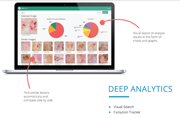 DermEngine deep analytics artificial intelligence in dermatology CBIR