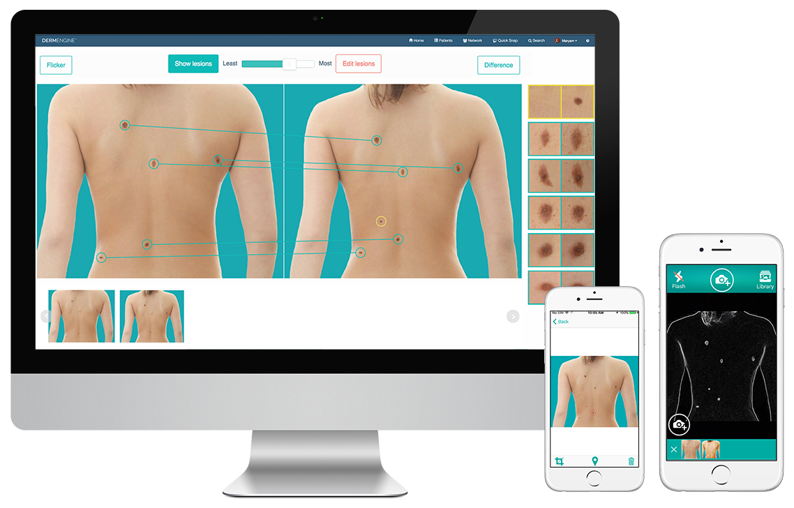 DermEngine Full Body Imaging Cross Platform