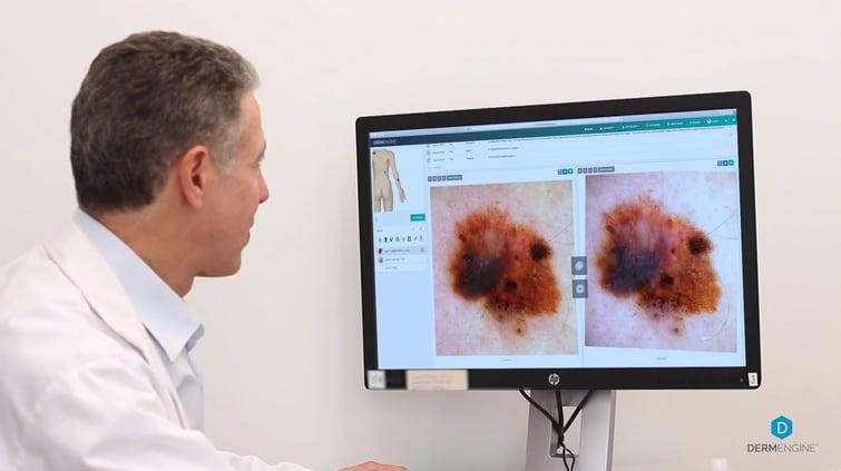 Dermatologist Comparing Lesions On DermEngine