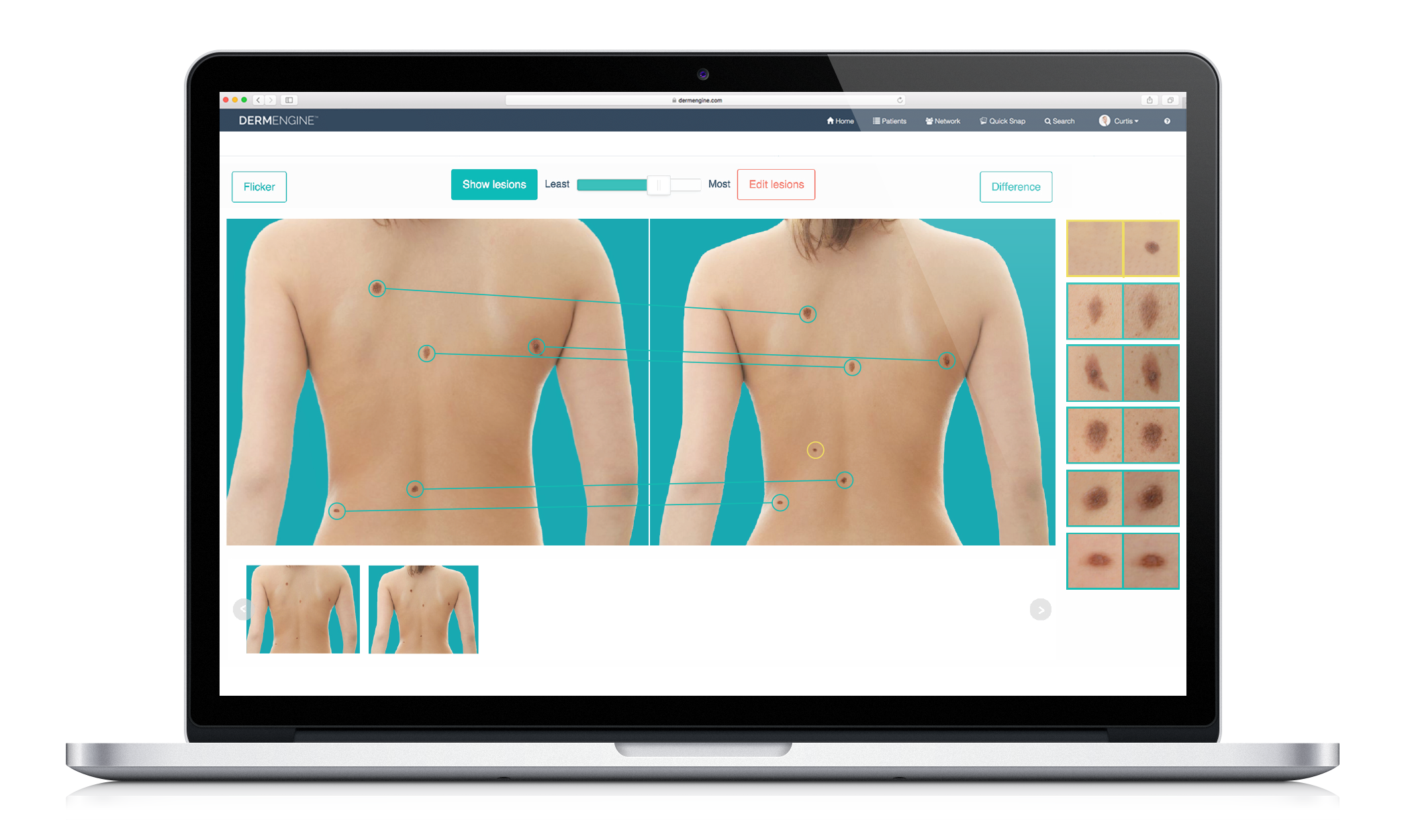 Total Body Photography System