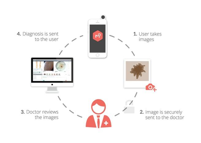 MoleScope (Mobile Dermatoscope) Patient Cycle DermEngine