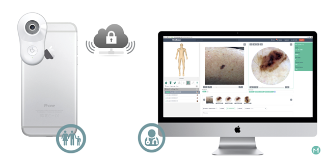 MoleScope DermEngine Store and Forward Teledermatology