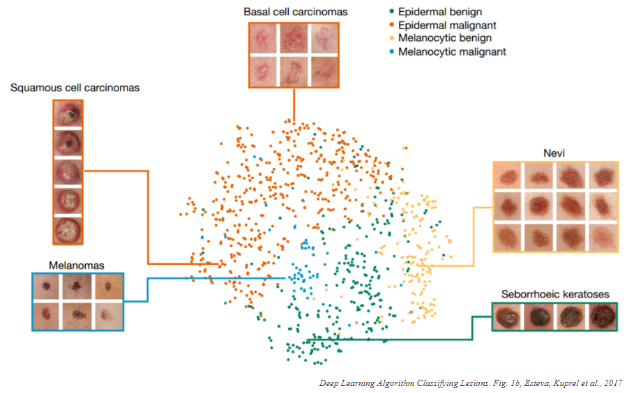 Deep Learning Algorithm Classifying Lesions