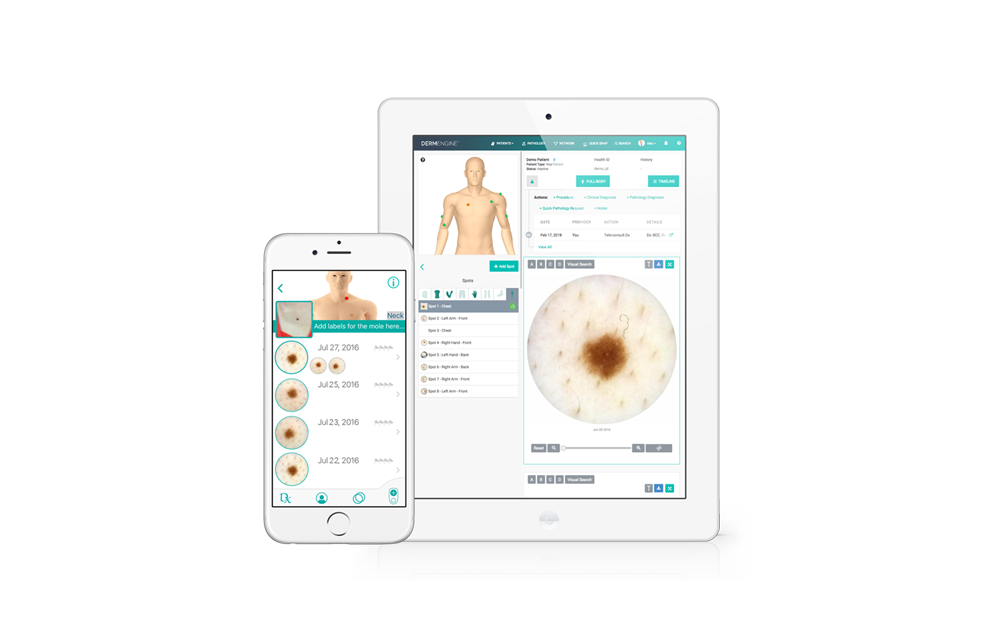 Intelligent Dermatology Software - iOS
