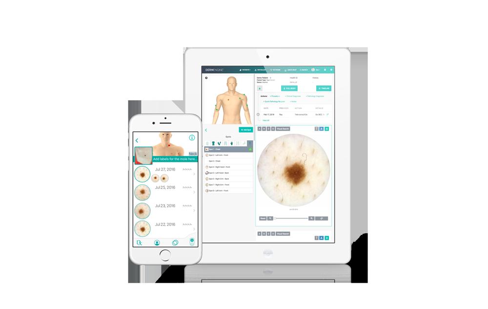 Intelligent Dermatology Software - iOS