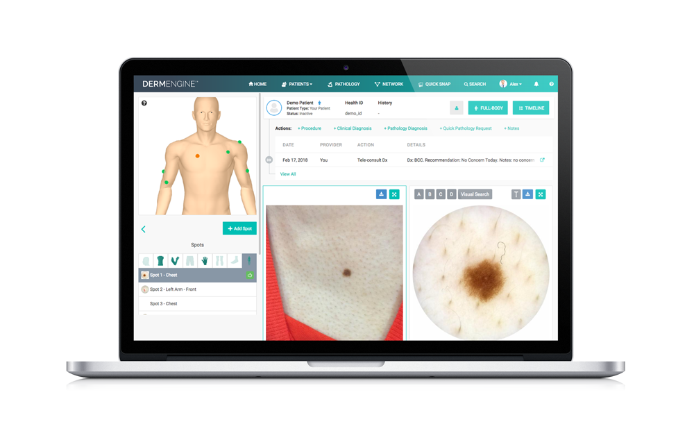 Intelligent Dermatology Software - Web
