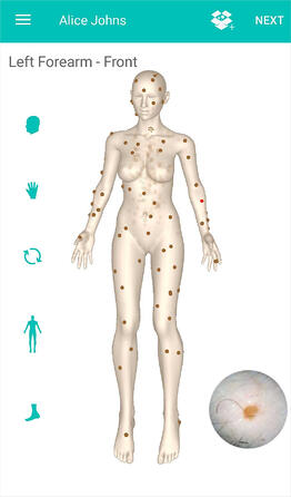 DermEngine 3D Body Map Spot Identification