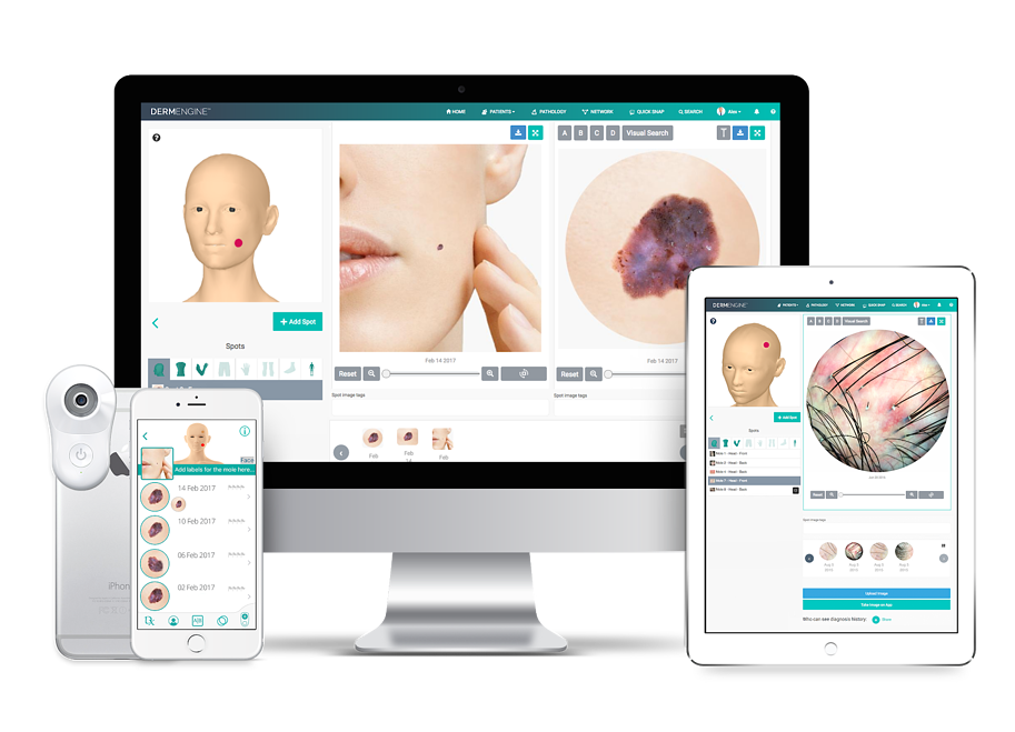 DermEngine Intelligent Dermatology Mobile Devices