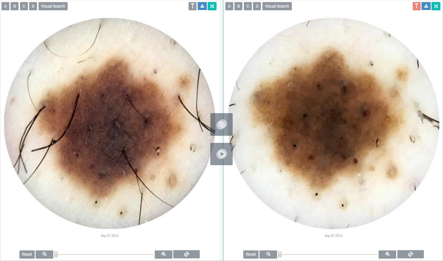 DermEngine Intelligent  Dermatology Software Razor Tool for Skin Analytics
