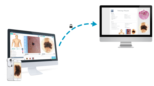 DermEngine Safe Transfer and Process of Personal Data