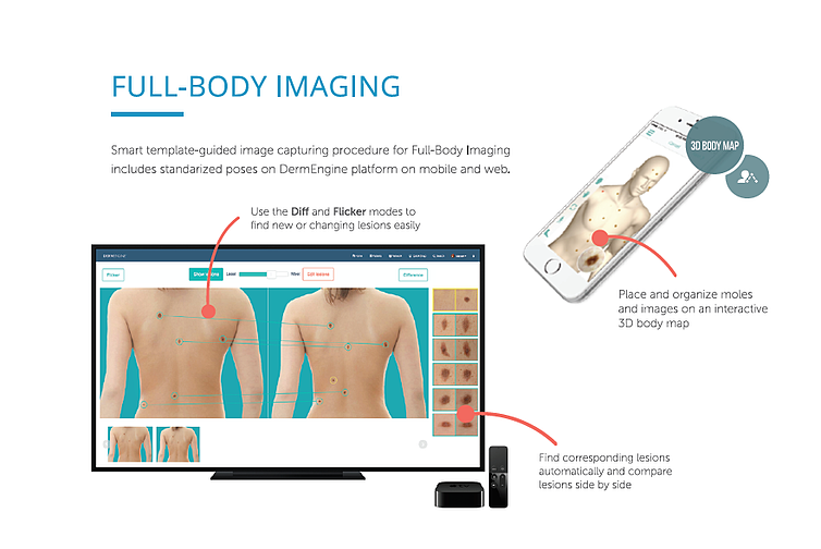 DermEngine Total Body Photography and Dermoscopy tools MoleScope