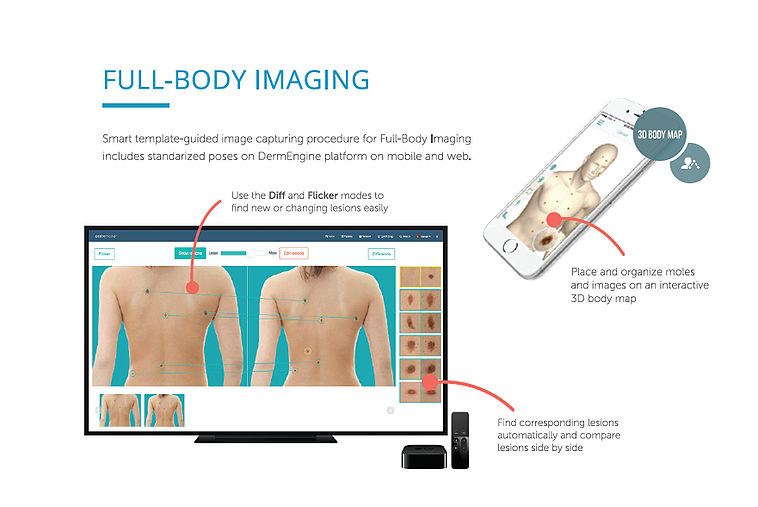 DermEngine Total Body Photography MoleScope