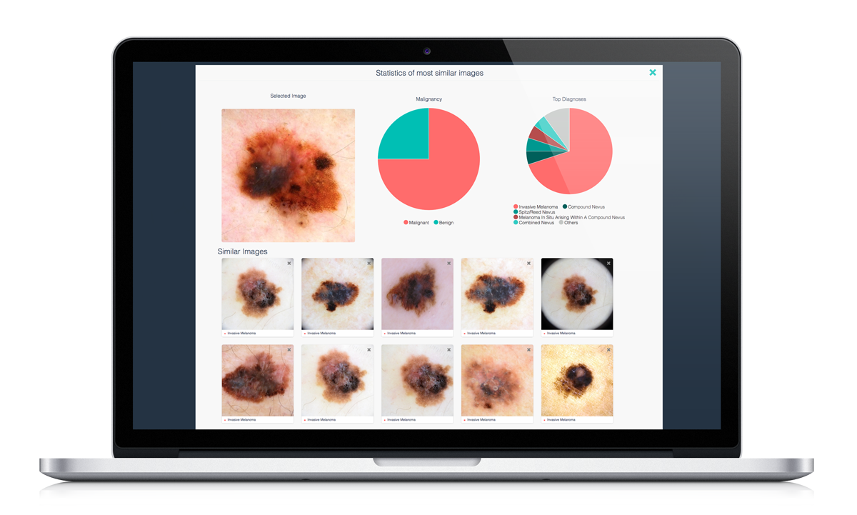 DermEngine's Clinical Decision Support Tool Visual Search Providing Visually Similar Images Of Pre-Labelled Pathology Images To The Submitted Case