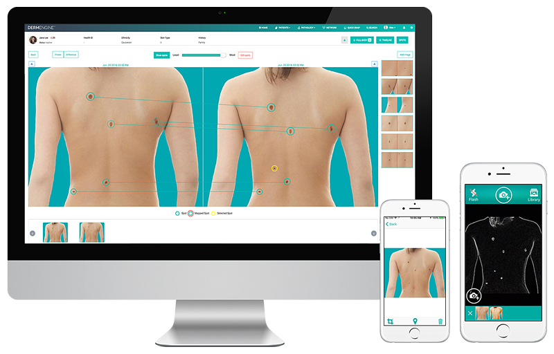 Total Body Photography (whole body screening) captures and analyzes full body images for lesion detection and the evaluation of new or changing moles