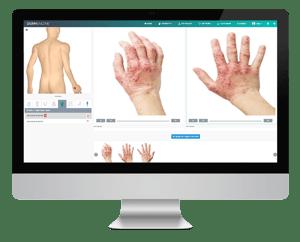 DermEngine General Dermatology Telederm Services