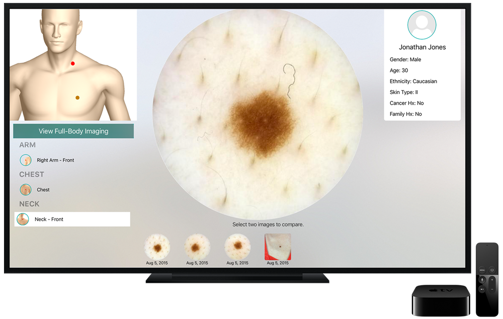Intelligent Dermatology Software - Apple TV