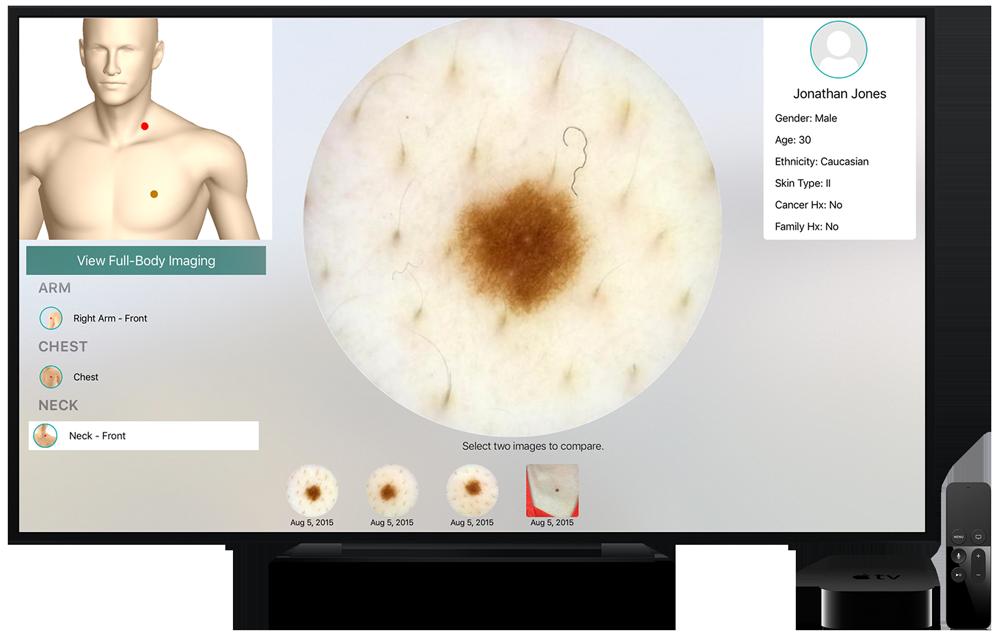 Intelligent Dermatology Software - Apple TV
