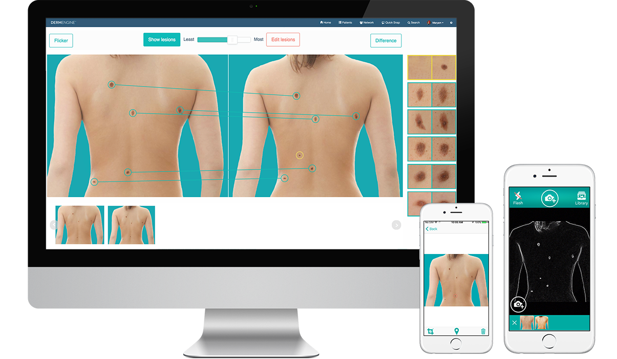 Total Body Photography (whole body screening) captures and analyzes full body images for lesion