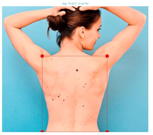 Full body Imaging Mole Map
