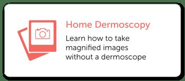Home Dermoscopy Imaging Guide MoleScope