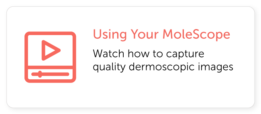 Using Your MoleScope Dermoscope