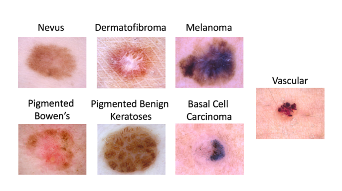 DermEngine algorithms were awarded the ISIC 2018 Award for their accuracy in skin cancer disease classification.