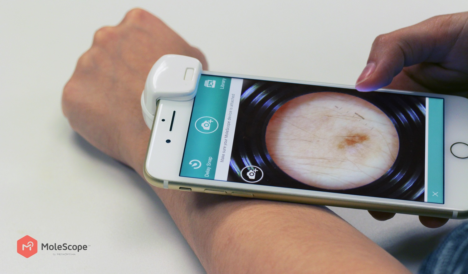 Mobile dermoscopes are empowering patients to perform own self-examinations