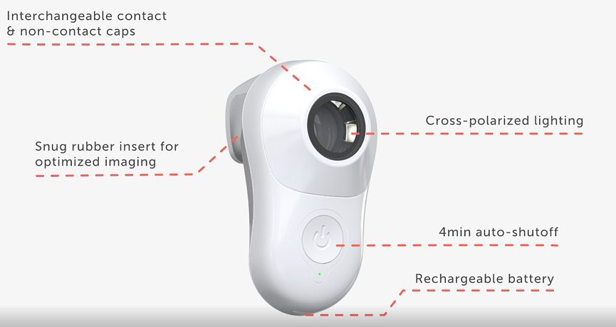 MoleScope - Mobile Dermoscope - Skin Cancer App