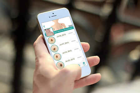 Mobile devices enabling teledermatology consultation.