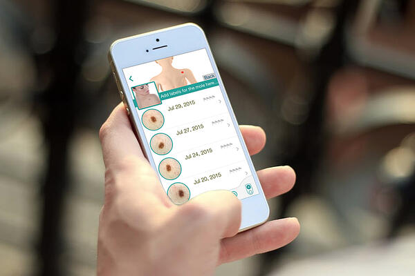 Patients can utilize their phones with a mobile dermoscope attached to take pictures of compromised spots.