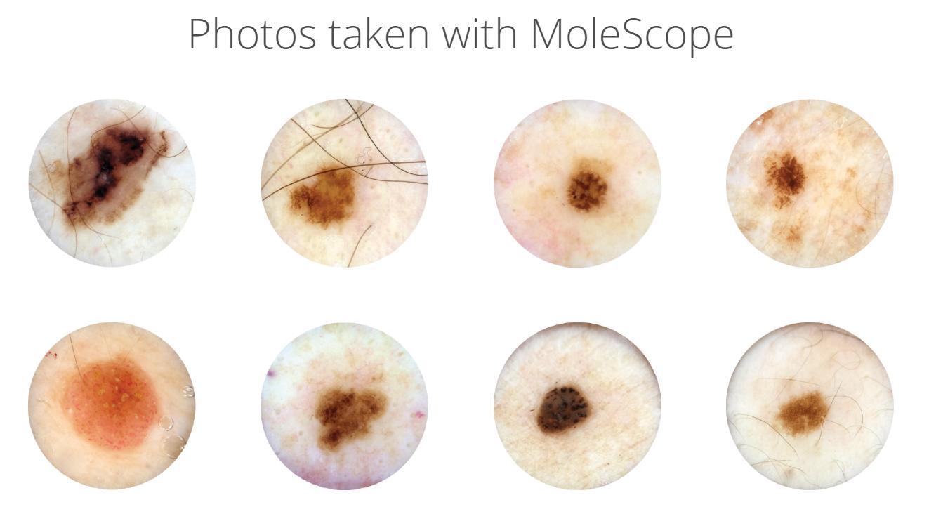 Photos taken with MoleScope (Mobile Dermatoscope)