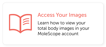 Access Total Body Images MoleScope
