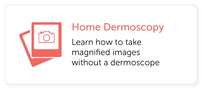 Home Dermoscopy Imaging Guide