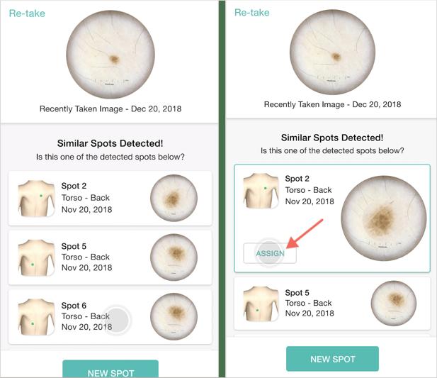 Smart Snap  for Intelligent Skin Imaging DermEngine App