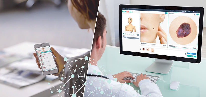 MoleScope Digital Dermoscopy and DermEngine Teledermatology Software