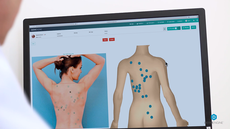 Total Body Photography Feature On DermEngine for MoleMapping