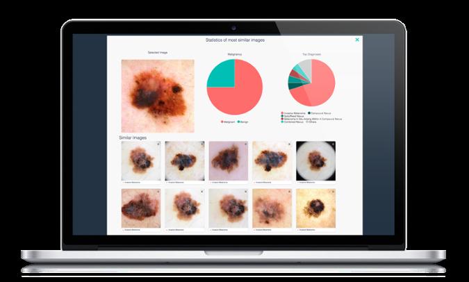 Intelligent Dermatology Software ( Dermengine's VisualSearch )