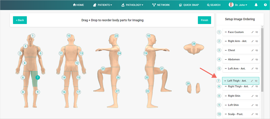 Create Imaging Order Total Body Photography