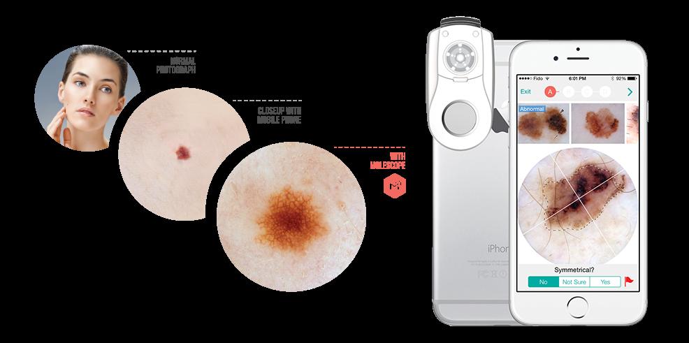 MoleScope - Seamless integration device for mobile dermoscopy