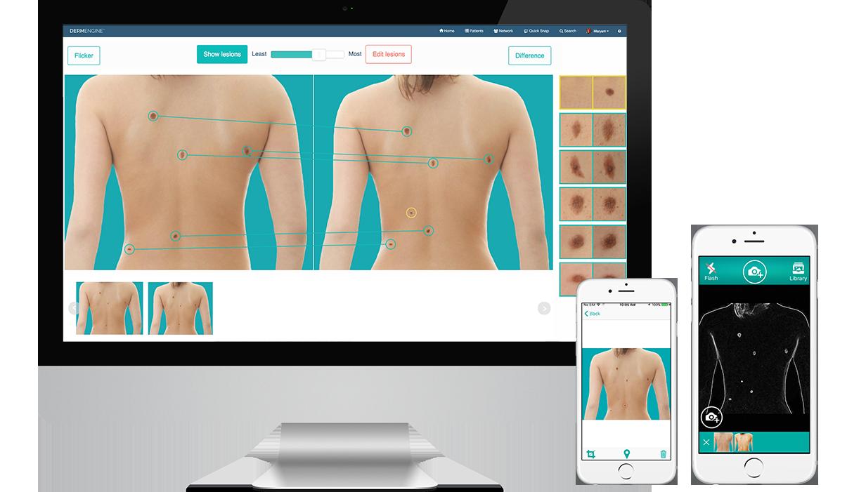 Full Body Imaging
