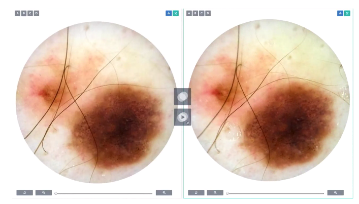 DermEngine Intelligent Dermatology EMR Service